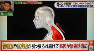 予約殺到スゴ腕の専門外来SPで紹介された肩こり改善法