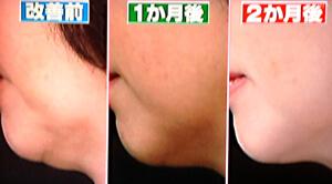 ほうれい腺とアゴのたるみを劇的に改善する方法(世界一受けたい授業より)